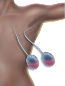 Mastectomydrains